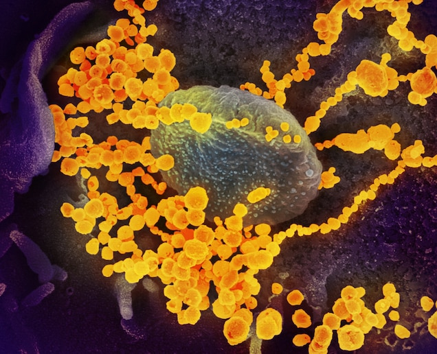 There are more viruses than stars in the universe. Why do only some infect  us?